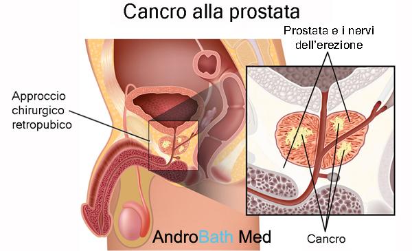 prostata erezione